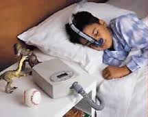 Child Sleep Apnea