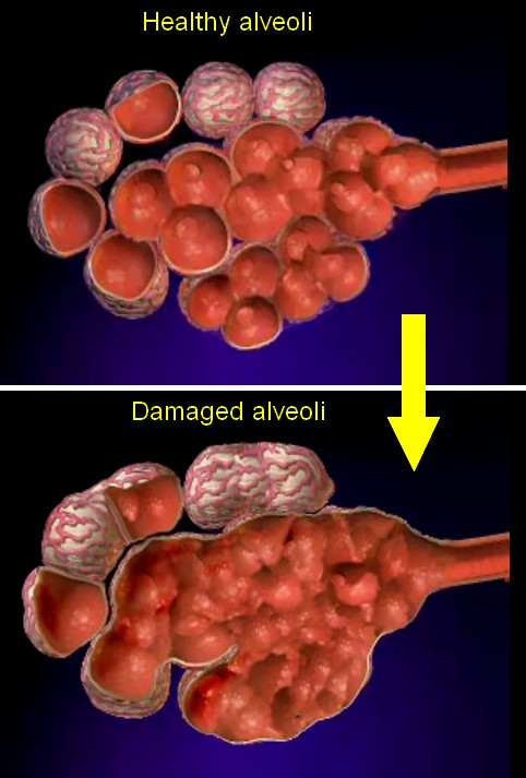 sleeping-emphysema-healthy-damaged-alveoli