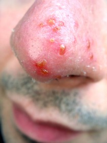 AllergicBlistersOnNose