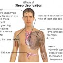 Sleep Deprivation Consequences | What's the Worst Thing That Can Happen?