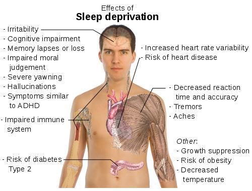 Sleep Deprivation Consequences What S The Worst Thing