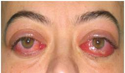 People Sleeping with Their Eyes Open Corneal irritation lagophthalmos
