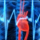 Is Central Sleep Apnea and Atrial Fibrillation Linked?