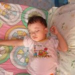 Can A Child With Sleep Apnea May Also Have Epilepsy